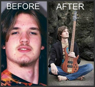 Josh Fossgreen before and after images