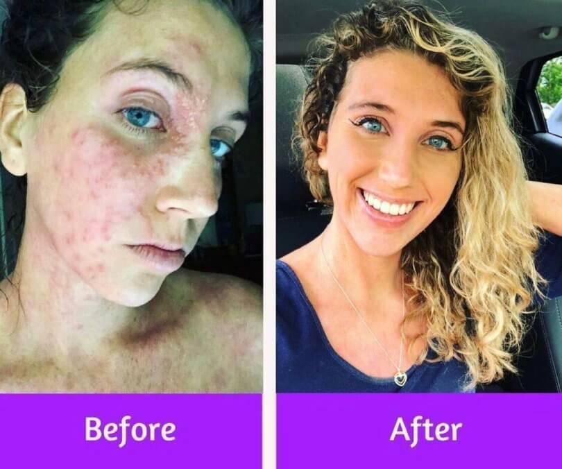 Caileigh Feldman - before and after eczema herpeticum - chronic eczema - topical steroid withdrawal - Fruit-Powered