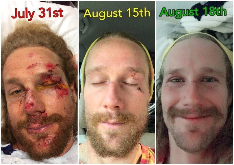 Chris Kendall - motorcycle crash recovery progress - Fruit-Powered